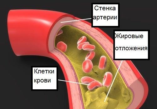 Холестерин и триглицериды