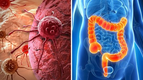 Рак прямой кишки и его симтомы