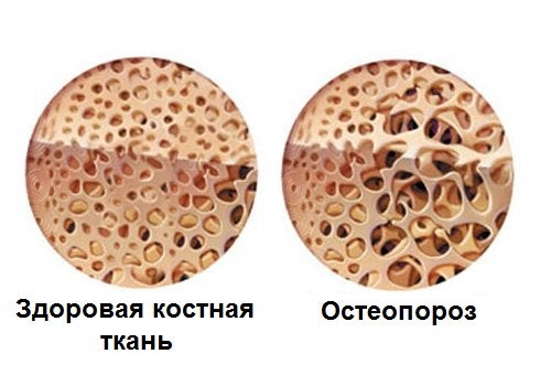 Остеопороз может вызвать боль в костях