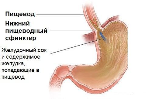 Желудочный рефлюкс: советы и натуральные средства