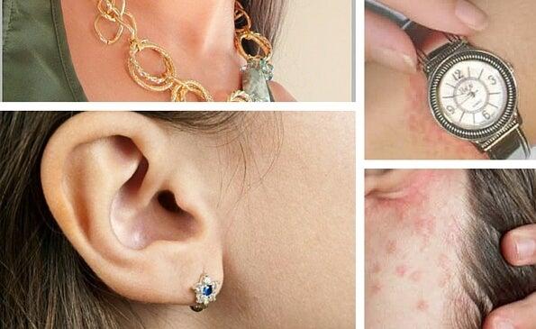 Аллергия на бижутерию: домашние средства помогут с ней справиться
