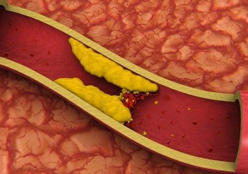 Косточка авокадо снижает уровень холестерина в крови