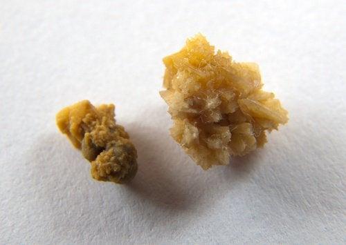 Камни в почках: продукты, которые провоцируют их появление