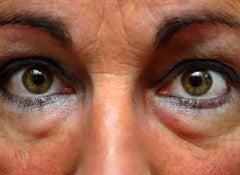 Опухшие глаза