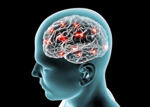 Мозг и недостаток сна