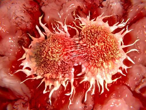 Антиканцерогенная терапия с помощью замороженного лимона и рак прямой кишки