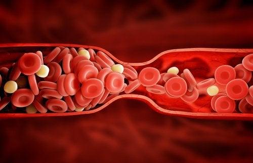 Борьба с холестерином и куркума