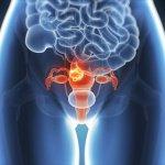 Эндометриоз: «тихая» болезнь, которая увеличивает риск инфаркта у женщин