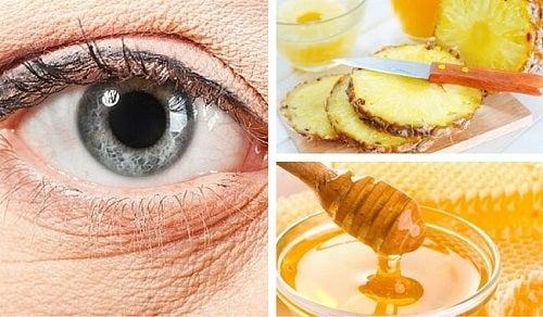 Натуральная маска из ананаса, которая поможет уменьшить морщины вокруг глаз