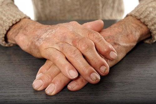 Куркума облегчит симптомы артрита