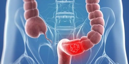 Заболеваемость раком прямой кишки у женщин, что нужно знать?
