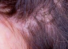 Экзема на коже головы