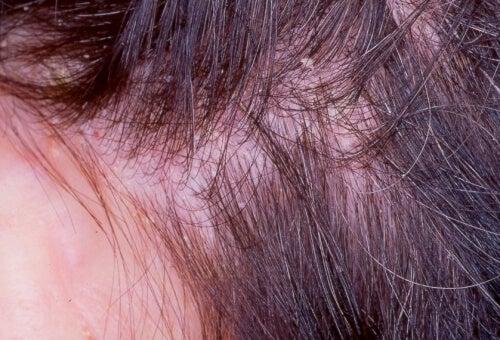 Экзема на коже головы: несколько натуральных рецептов, которые помогут с ней справиться