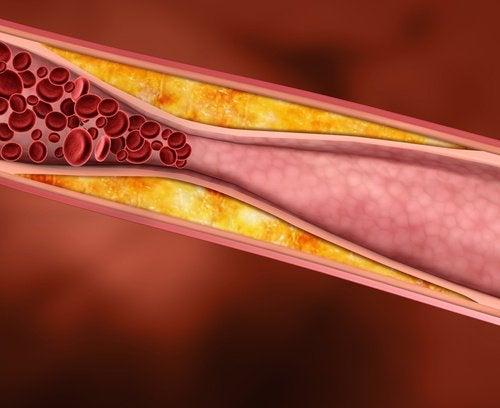 Чеснок очищает кровь от токсинов и уничтожает избыток холестерина