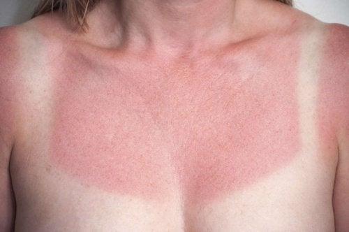 Яблочный уксус и солнечные ожоги