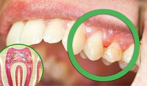 Почему болят зубы: 6 возможных причин