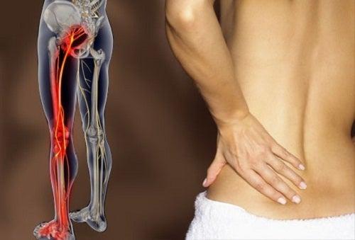 Признаки ишиаса: боль в спине