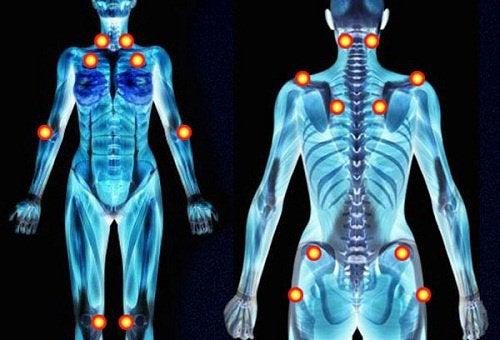 Фибромиалгия и болевые точки