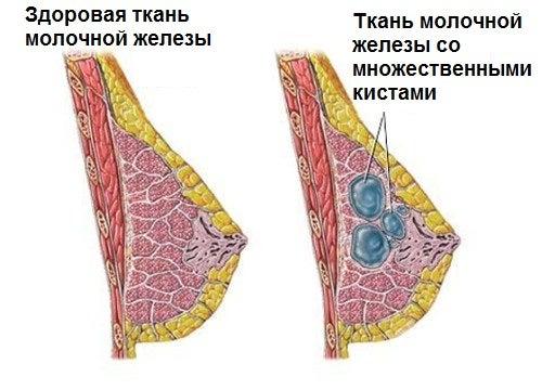 Киста молочной железы: советы по раннему выявлению и предупреждению