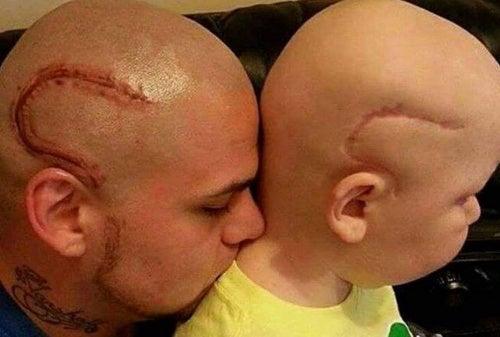 Зачем отец сделал себе тату, похожее на шрам сына после операции?