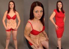 После снижения веса