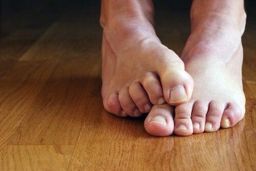 Натоптыши и ноги