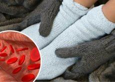 Нарушение кровообращения вызывает отек и воспаление в конечностях
