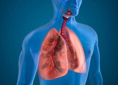 Лёгкие курильщика: 10 натуральных очищающих средств