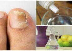 Противогрибковое средство и грибок ногтей