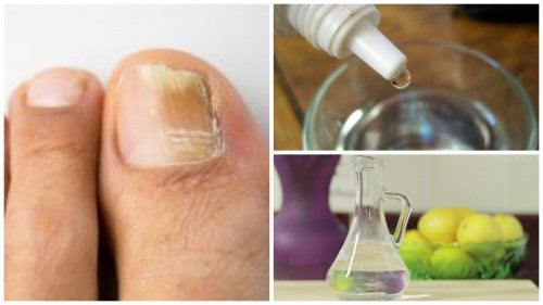 Готовим домашнее противогрибковое средство для ногтей