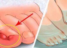 Вросшие ногти часто вызывают боль и дискомфорт