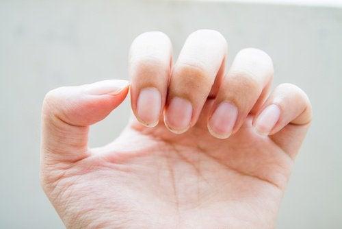 Не стоит грызть ногти