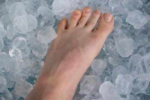 Лед и косточка на ноге