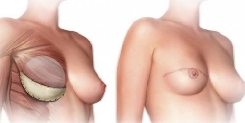 Мастэктомия: что нужно знать об этой операции?
