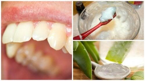 Зубной налёт: натуральные средства для борьбы с проблемой