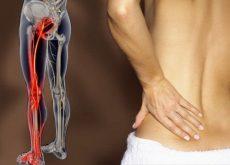 Боль при ишиасе и седалищный нерв
