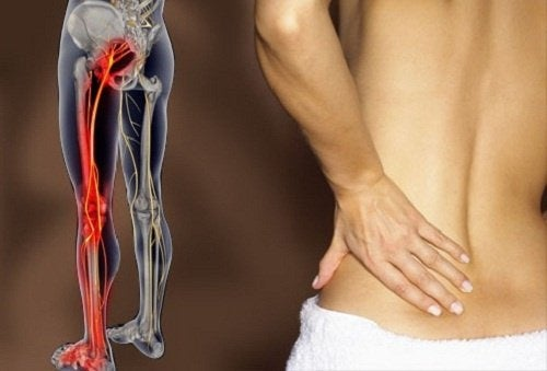 Какие упражнения облегчат боль при воспалении седалищного нерва