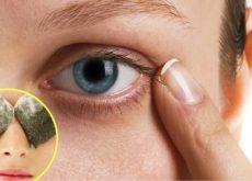 Как устранить темные круги под глазами при помощи натуральных средств