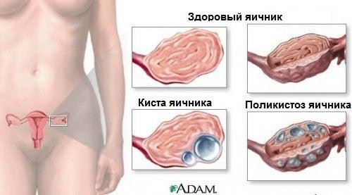 Из за кисты может возникать боль во время секса