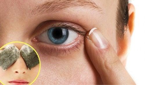 Темные круги под глазами: 5 средств, которые помогут с ними справиться