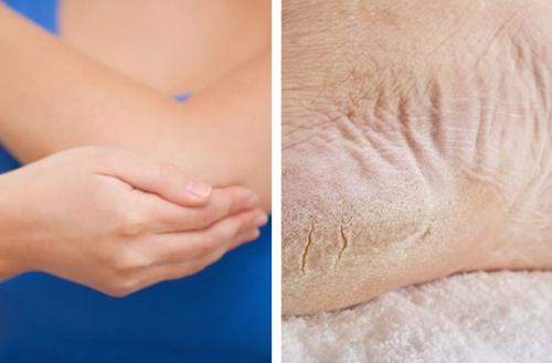 Шершавые локти и пятки? Научитесь смягчать кожу натуральными средствами!
