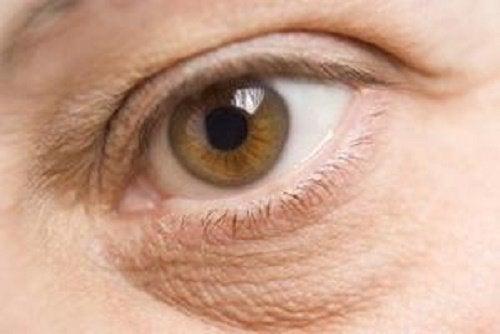 Мешки под глазами и стрессовые ситуации