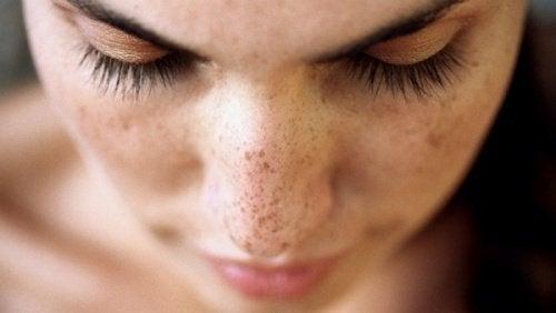 6 натуральных средств, которые помогут убрать черные точки и пятна на коже
