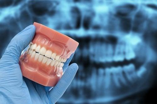 Бруксизм и сломанные зубы