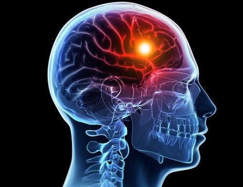 Мозг и инсульт