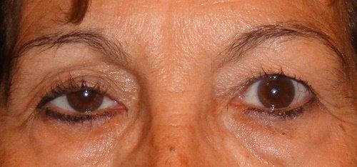 Глаза и птоз