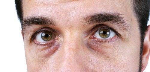 Темные круги под глазами: 4 натуральных средства против них