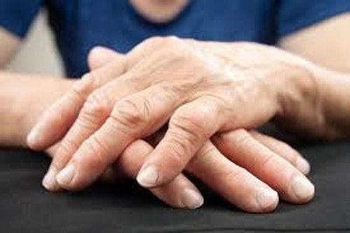 Найден новый метод лечения артрита