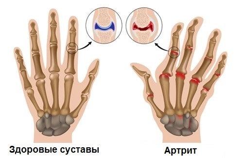Ревматоидный артрит: 7 простых шагов, чтобы справиться с болезнью
