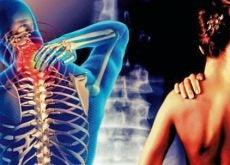 Цервикобрахиалгия боль в шее